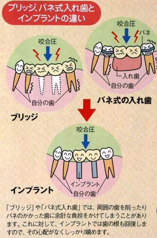 相浦歯科医院 インプラント治療 ブリッジと入れ歯の違い