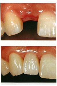 相浦歯科医院 インプラントとは 前歯インプラント