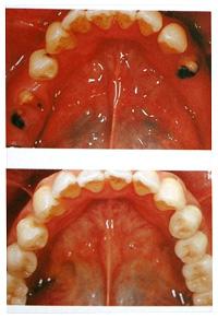 相浦歯科医院 インプラントとは 臼歯インプラント