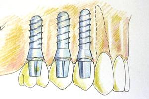 相浦歯科医院 インプラントとは インプラント