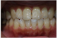 相浦歯科医院 審美歯科 ホワイトニング後