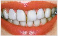 相浦歯科医院 審美歯科 ホワイトコート2(治療後)