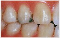 相浦歯科医院 審美歯科 ホワイトコート3(治療前)