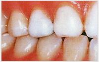 相浦歯科医院 審美歯科 ホワイトコート4(治療後)