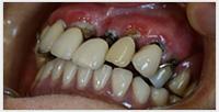 相浦歯科医院 訪問歯科 訪問診療前