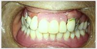相浦歯科医院 訪問歯科 訪問診療後
