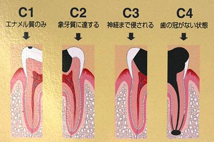 相浦歯科医院 その他の診療 虫歯の進行