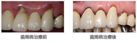 相浦歯科医院 歯周病 治療前後