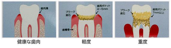 相浦歯科医院 歯周病 進行